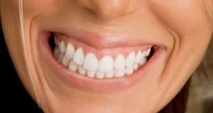 Arquivos Clareamento Dental Caseiro Ortocia