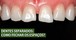 dentes separados diastemas