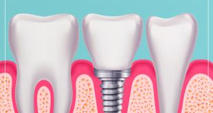 curso de implantes dentários