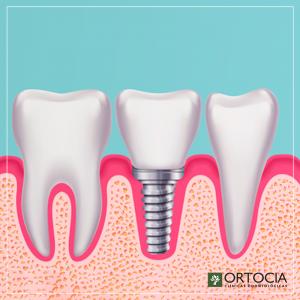 implante dentário em cambuí