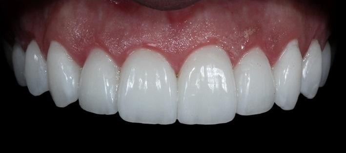 facetas de porcelana perfeitos como os dentes