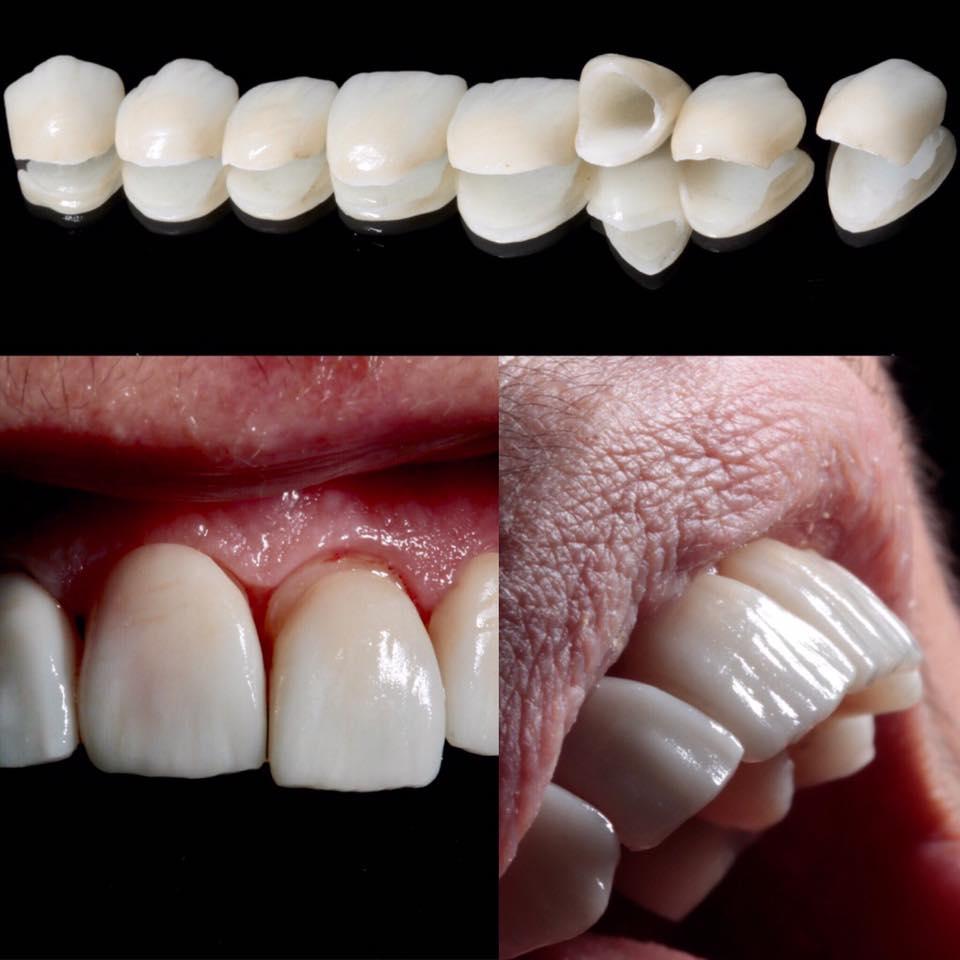facetas de porcelana ou lentes de contato dental