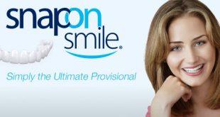 snap on smile mulher sorrindo