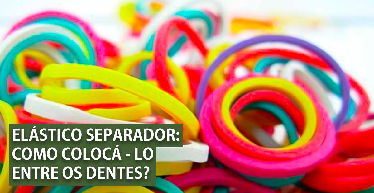 elásticos de aparelho coloridos