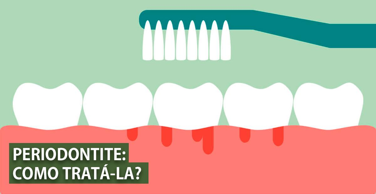 prevenção de doença periodontal